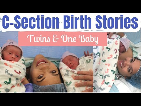 SCHEDULED C-SECTION TWINS PREP & BIRTH STORIES | Planned Cesarean Section | Mai Zimmy