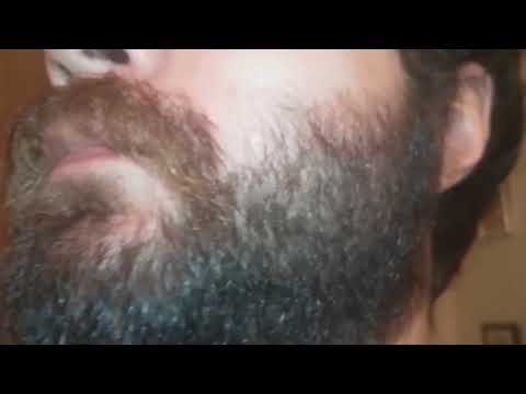 10-weeks-beard-growth-9/7/2018-(over-2-years-off-and-on-minoxidil)