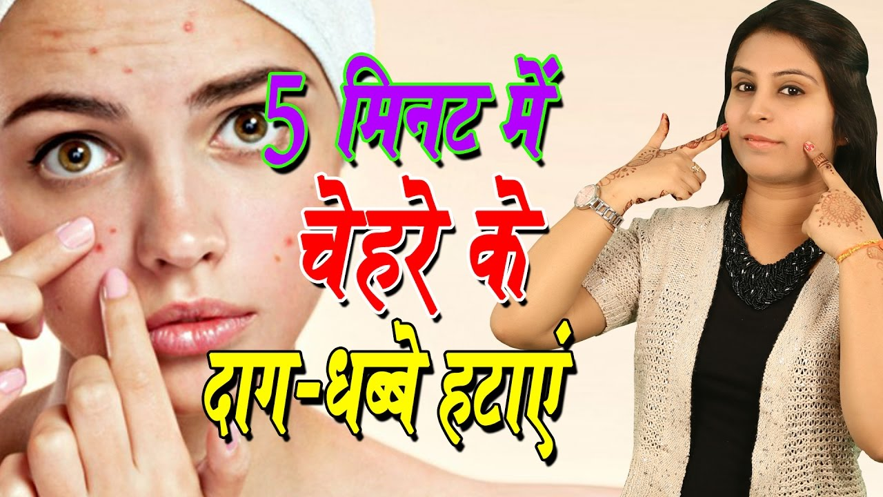 5 म नट म च हर क द ग धब ब हट ए Pimples Marks Removal On Face At Home Acne Treatment Beauty