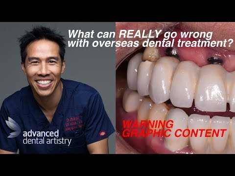 Failed Dental Implants - Overseas Dental 'Holidays' - Australia vs Asia & India [Graphic Content]