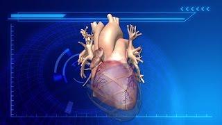 Robotic heart sleeve supports failing hearts