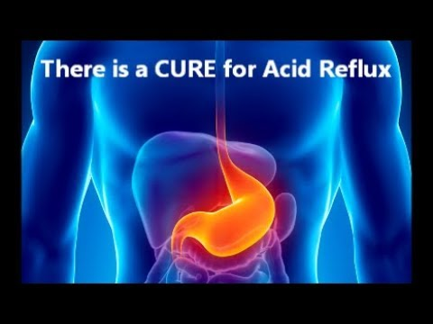 There is a CURE for Acid Reflux