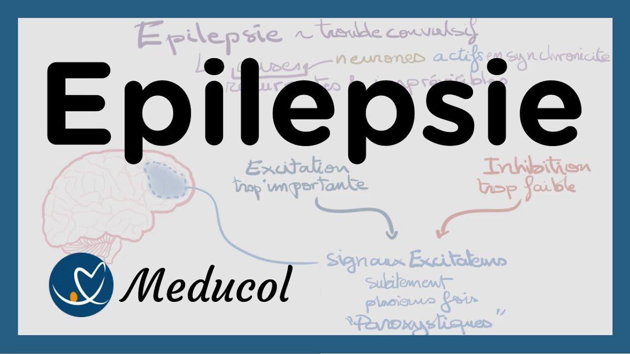 epilepsie sympt mes cause crise d 39 pilepsie partielle et g n ralis e traitement de l. Black Bedroom Furniture Sets. Home Design Ideas
