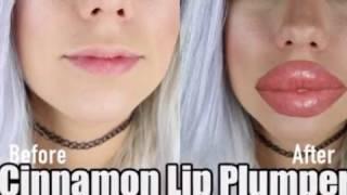 🎉💝 [ No Injection ] ~ Lèvres  Pulpeuses en 7 jours 💯 % Garantie!