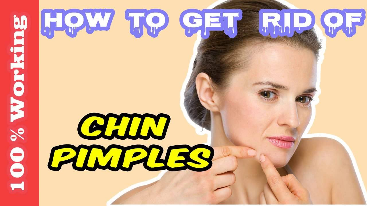 How to get rid of blemishes overnight home remedies