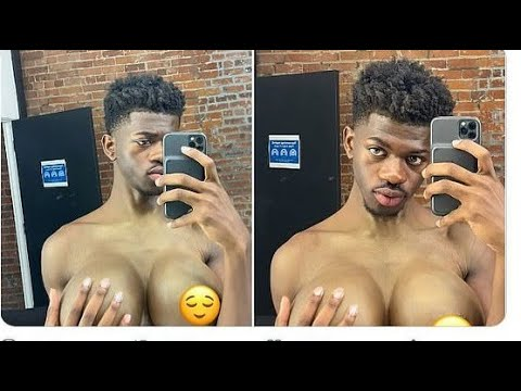 Lil Nas X BREAST IMPLANTS: RAPPERS GONE WILD