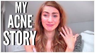 My Acne Story