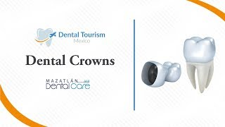 Dental Crowns Mazatlan - Dental Tourism Mexico