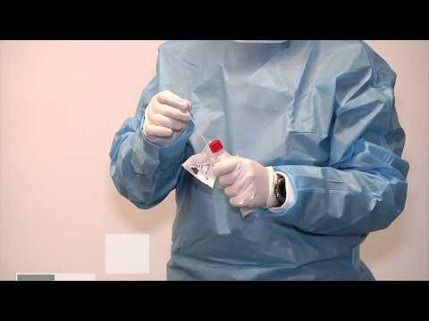 Coronavirus: come eseguire il tampone naso-faringeo