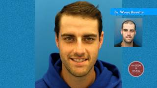 Hair Transplant Before and After-Dr. Wong at Hasson and Wong