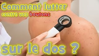 bouton d'acné : Comment lutter naturellement contre vos boutons sur le dos ?