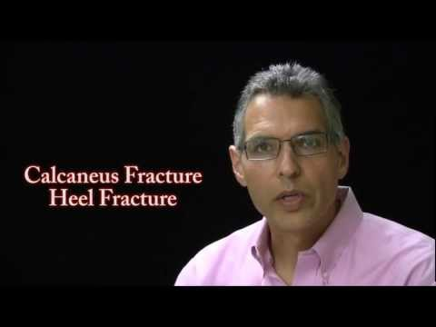 Calcaneus Fractures Caused By Accidents - FL Injury Lawyer