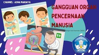 Info Penyakit Gangguan Pencernaan - RS Islam Surabaya A.Yani.