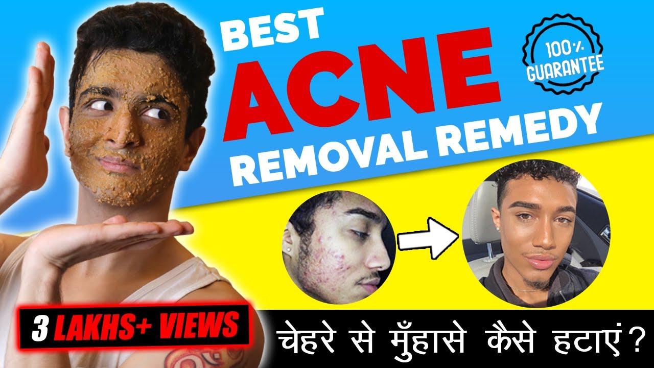 Fast PIMPLE Removal At Home | मुँहासे के लिए घरेलू उपाय | BeerBiceps Hindi