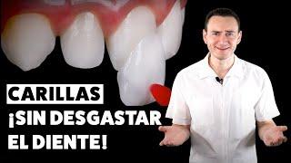 Carillas dentales ¡SIN DESGASTE! Una excelente opción | CASO REAL