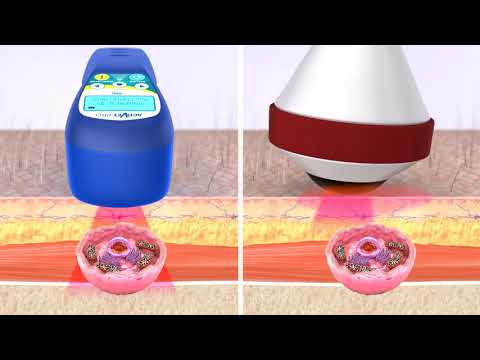 How Veterinary Laser Therapy Works: MR4 ACTIVet PRO Vs. High Powered Class IV Lasers