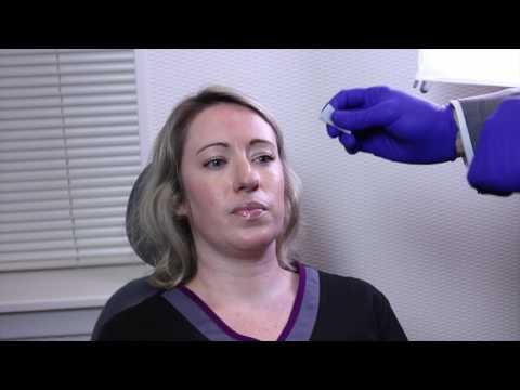 How Easy is Botox?