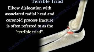 Elbow Fracture Dislocation Terrible Triad - Everything You Need To Know - Dr. Nabil Ebraheim thumbnail