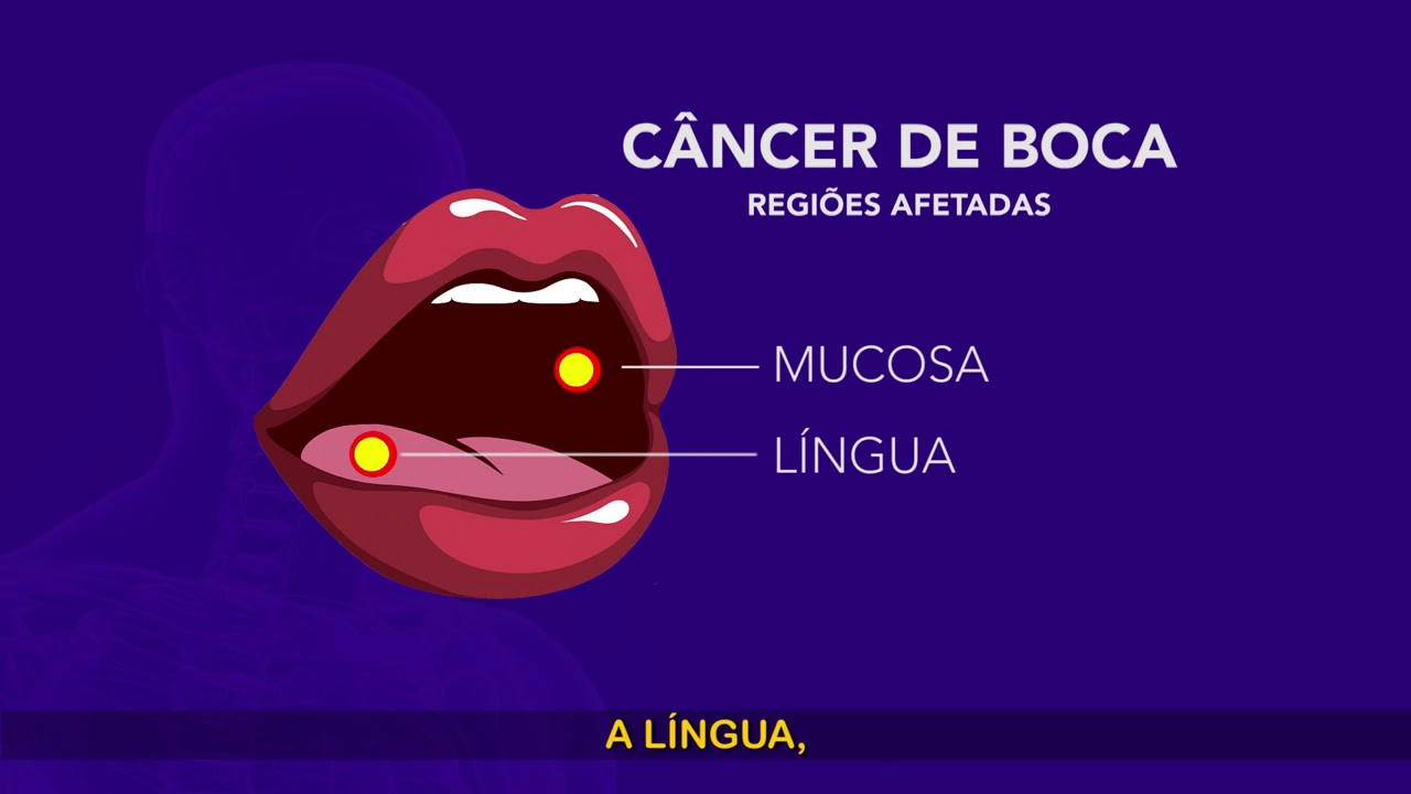 Cancer bucal objetivos - Caries Res