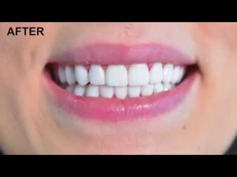 ابتسامة طبية تجميلية ذات ألوان طبيعية وتغنيك عن الروائح الكريهة وإلتهابات اللثة وتدوم معك لسنوات