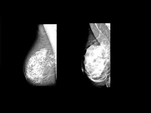 Poliklinika Harni - Promjene tkiva dojke povezane s godinama utječu na rizik od raka