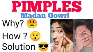 Pimples | Tamil | Madan Gowri | MG