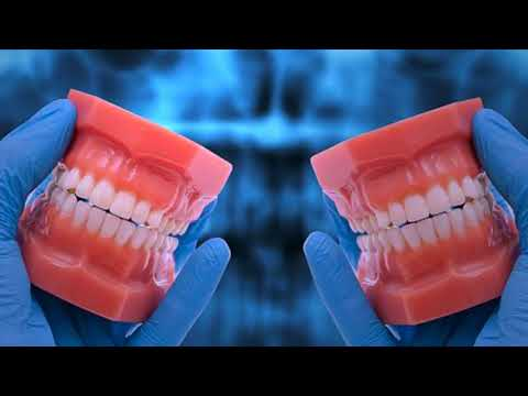 Important Reasons To Meet Oral Surgeon in Coral Springs, FL