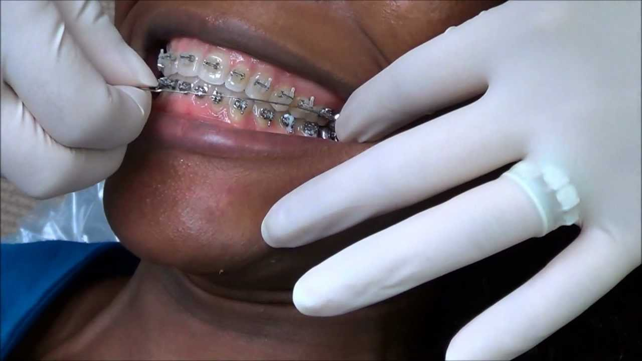 Arch Wire On Mouth Center Http Campnfamcom Galleries Motherboarddiagramwithlabelsmissing 92 Archwire Replacement My Braces At The Orthodontist Office Rh Youtube Com Clown