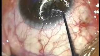 Eye Surgery By Lasik Method