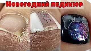 Педикюр на сухих ногах💅 Как вычистить подногтевую мозоль💅 Новогодний дизайн ногтей на ногах