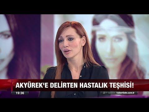 Umut Akyürek'i Delirten Hastalık Teşhisi - 11 Nisan 2018