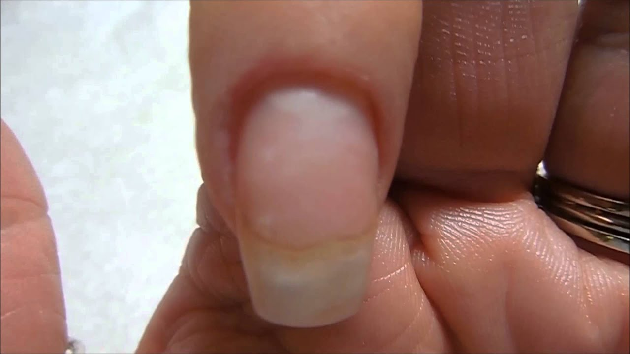 Does acrylic RUIN the nails ? - YouTube