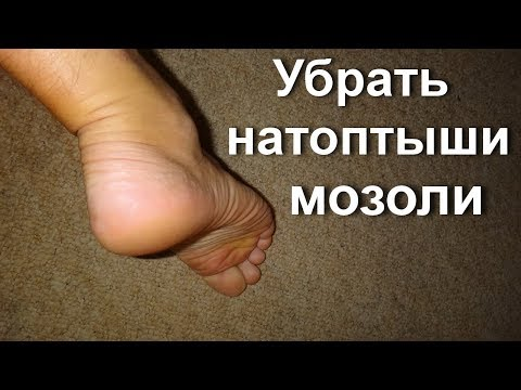 Натоптыш болит на ноге