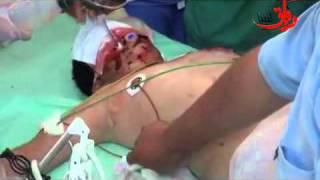 Libya on fire, sufferings of the wounded ливия последние ужасы войны