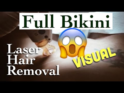 My Second Bikini Laser Hair Removal Session | FULL Visual Process