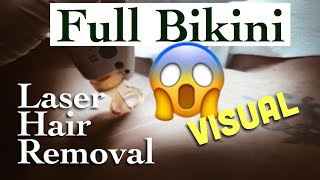 FULL BIKINI LASER HAIR REMOVAL | Dark Skin | GRAPHIC