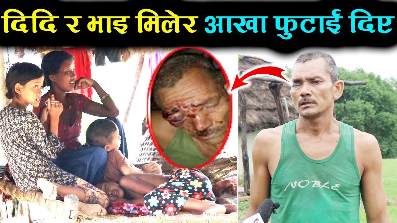 एक्कासी हानेर प्वाकै आखा फुटाइ दिए। ससाना नानी बाबु र श्रीमतीको बिचल्ली भो। Classic Nepali Channel