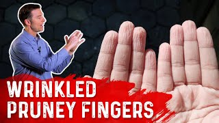 What Does Wrinkled Pruney Fingers Mean?