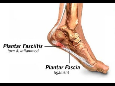 Plantar Fasciitis (Heel Pain) : How To Cure Plantar Fasciitis Fast on planters warts, planters phasiatis com, planters facetious treatment of symptoms, planters feet pain,