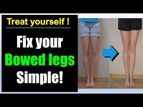 Bowed legs fix! Simple bowed legs exercise correction!
