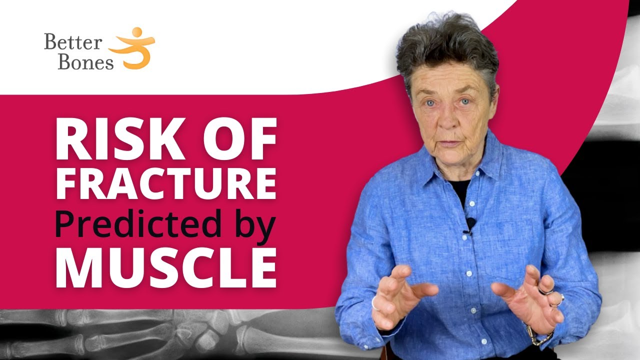 MUSCLE Greatest Predictor of FRACTURE RISK