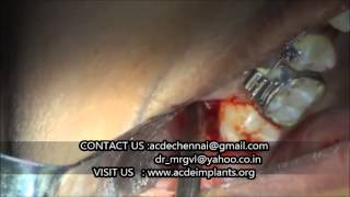 impacted upper wisdom tooth removal surgery video