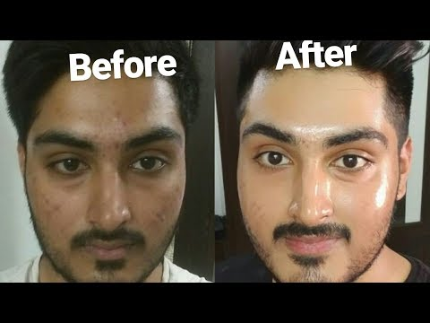 hqdefault - How To Remove Pimple And Blackheads
