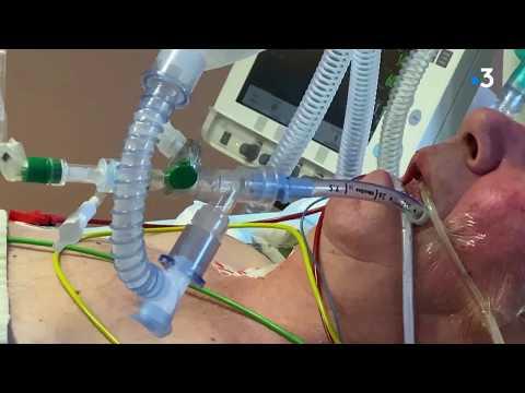 Coronavirus: au cœur du service réanimation de Guéret
