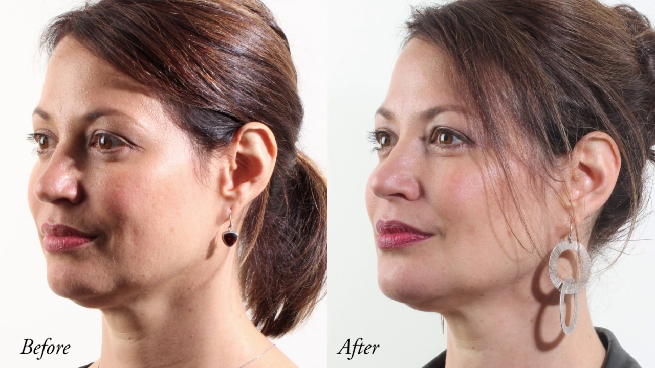 Dermal Filler Clinic in Melbourne | Dermal Fillers Cost
