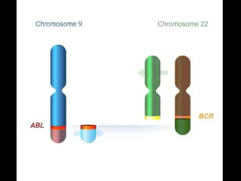 Chromosomes Philadelphie +   bcr abl