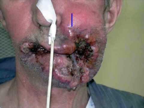 Alen des châtiments le moyen facile de cesser de fumer