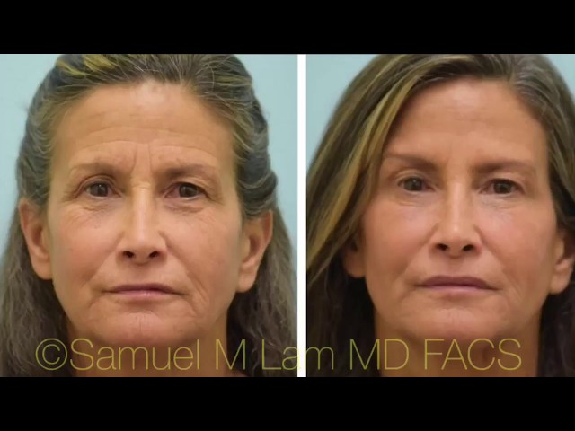 First-Time Botox/Fillers Testimonial w/Photos
