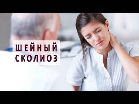 Симптомы и лечение шейного сколиоза