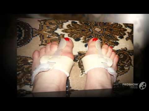 Боль в пальцах ног (болит палец на ноге)